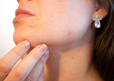 Skin Resurfacing Insurance
